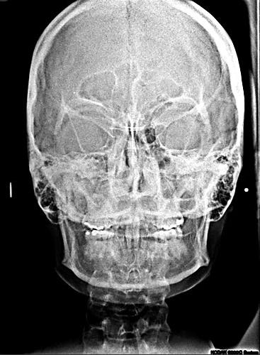 Dento Metric Radiografías Extraorales Caldwell