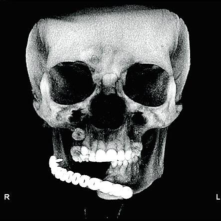 Dento Metric Tomografía cirugia