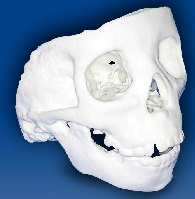Dento Metric Estereolitografia