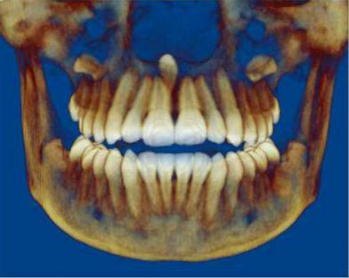 Dento Metric Tomografía Cone Beam Dientes Impactados