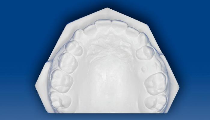 Dento Metric Modelos de Estudio