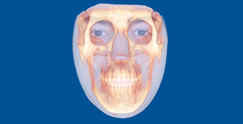 Dento Metric Tomografía ortodoncia