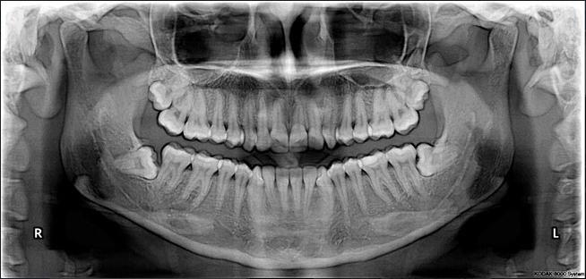 Dentometric Ortopantomografia