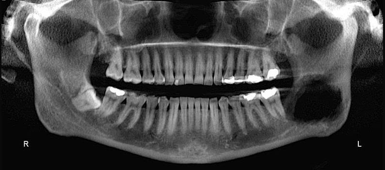 Dento Metric Cone Beam Tomografía de Patología