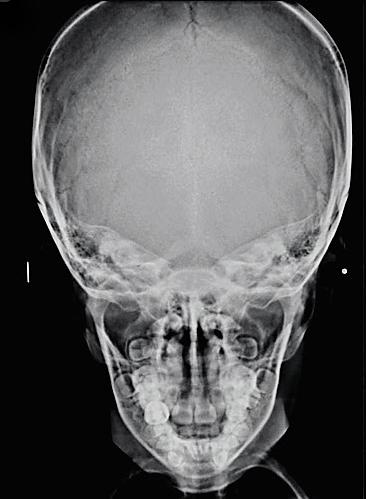 Dento Metric Radiografías Extraorales • Townes