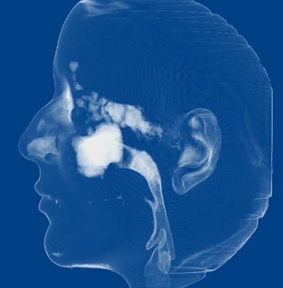 Dento Metric Tomografía de Vías Aéreas