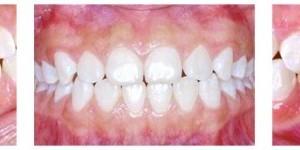 Dento Metric Fotografías Clínicas